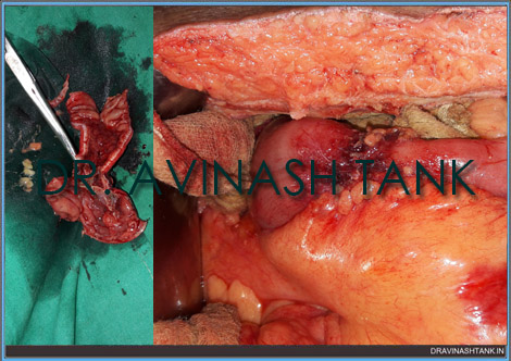 Tuberculosis of Intestine (Stricture); Intestine Surgery