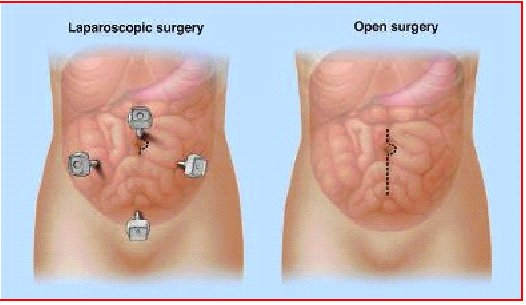 Laparoscopic Colon Surgery