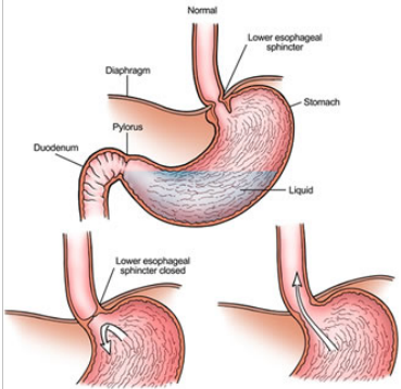 Know about GERD (Gastro-Esophageal-Reflux-Disease)