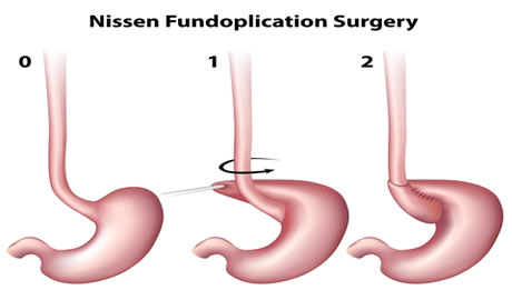 Laparoscopic Fundoplication Surgery
