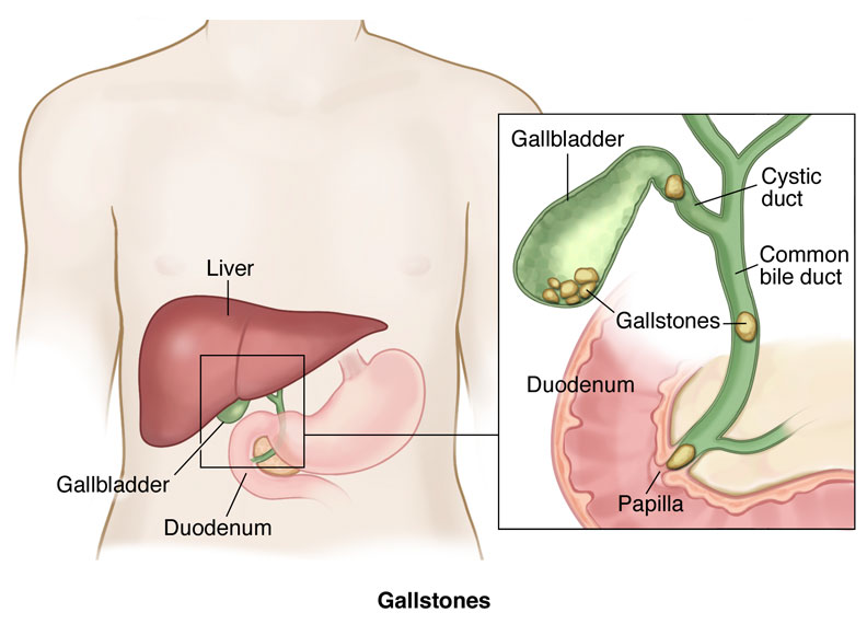 Dr avinash tank is best gall bladder bile duct surgeon surgeon in bile duct stones ccuart Image collections